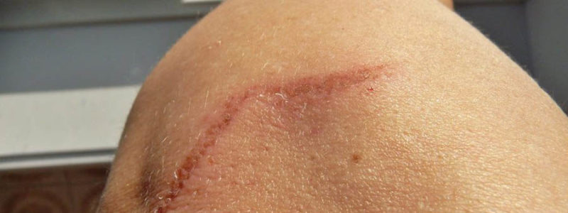 Does Laser Scar Removal Work?