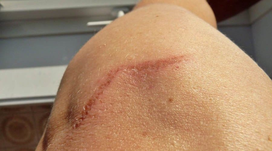 does-laser-scar-removal-work